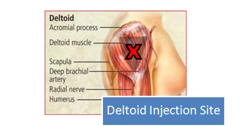 oral steroids side effects headache